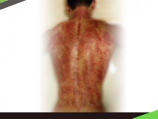 運動刮痧大揭密:增肌減脂,敢練你敢被刮嗎?!