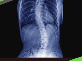 肌力訓練+伸展 8招改善脊椎側彎
